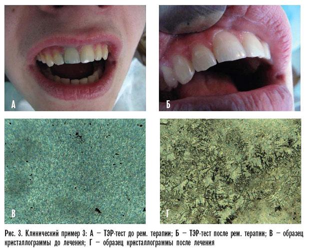 Тест зуба в стоматологии